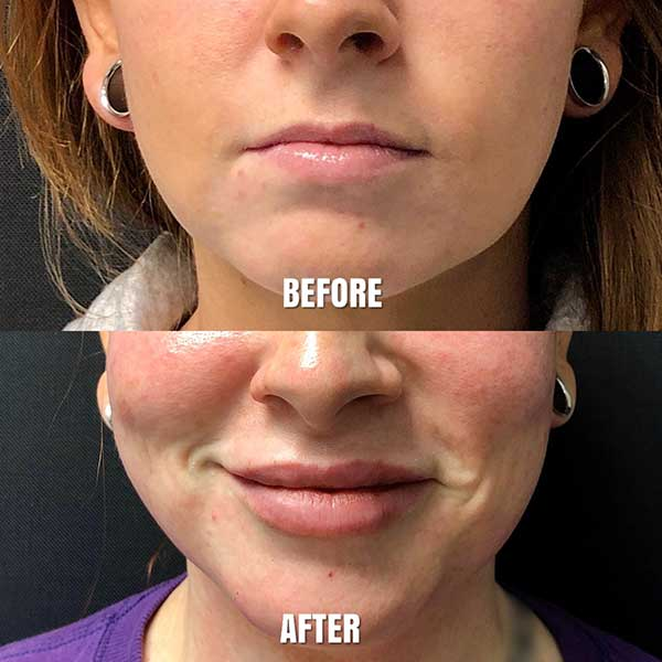 before and after female lip augmentation