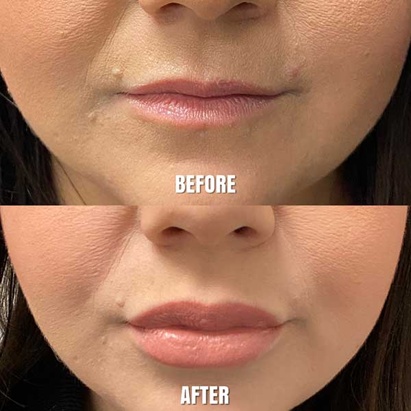 Before and After Pictures of Woman's Lip Augmentation