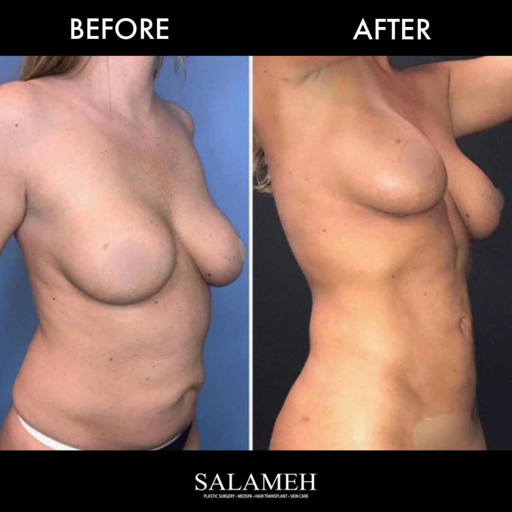 Woman's Waistline Before and After Surgery