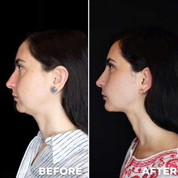 Side By Side Before and After of Woman's Liquid Facelift Results