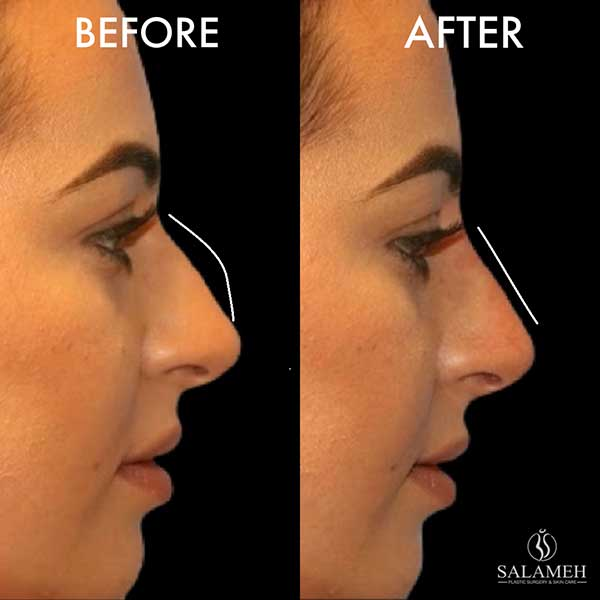 Before and After Woman's Liquid Rhinoplasty Treatment