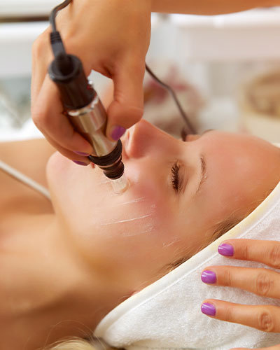 Microneedling Being Applied to a Woman's Face