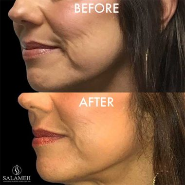 Woman's Face Before and After Marionette Fillers