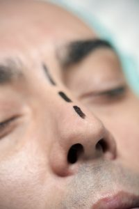 marked nose to undergo nose job