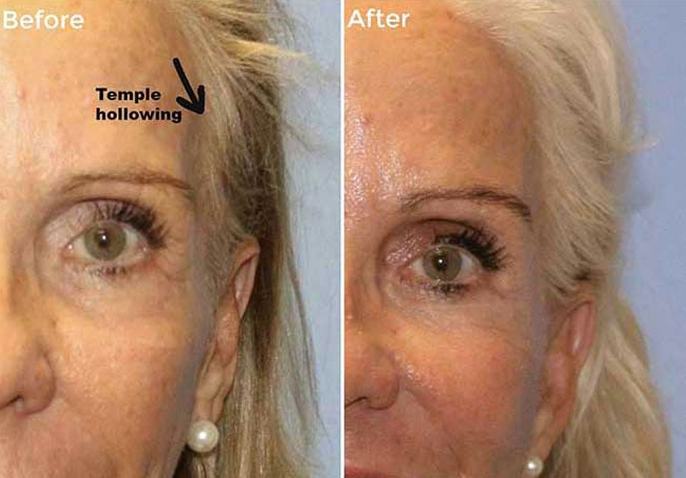 Woman With Pearl Earrings Before and After Hollowed Temple Treatments