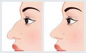 cartooned image showing before and after rhinoplasty