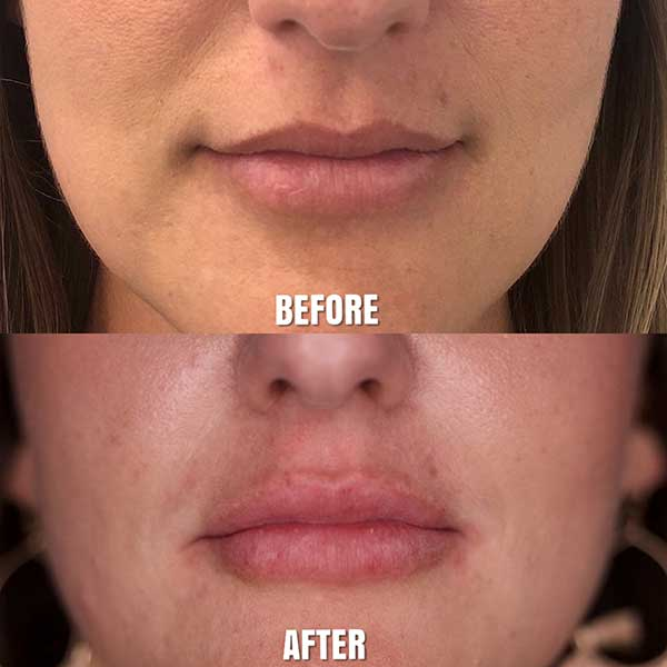Before and After Lip Augmentation Treatment