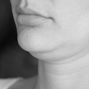 Black and White Double Chin and Lips