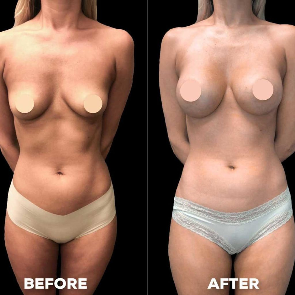 Slender Woman Before & After Breast Implants