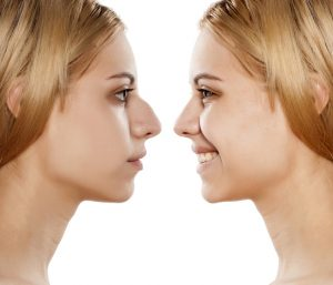 womans face before and after rhinoplasty procedure