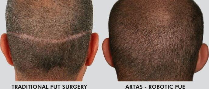 Hair Restoration Surgery Comparison
