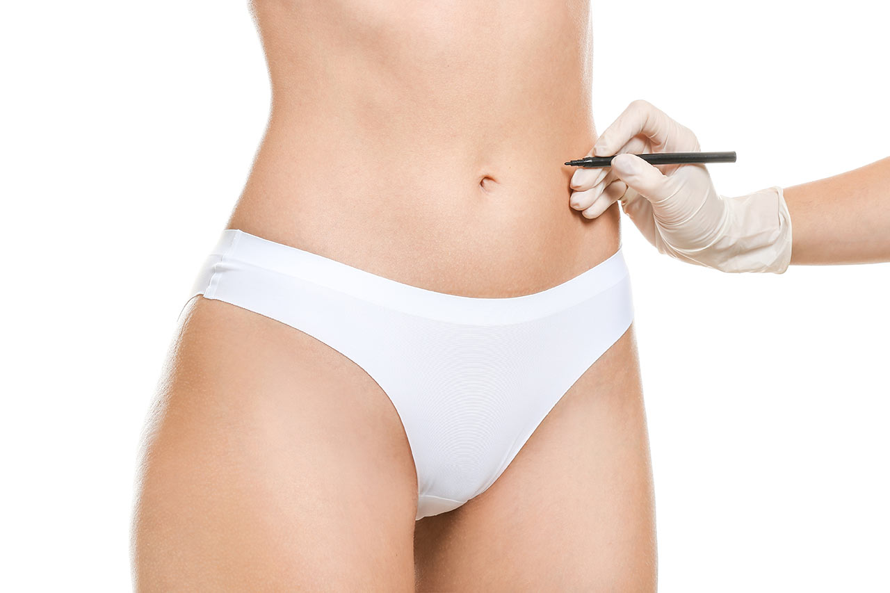woman with tummy being marked for surgery