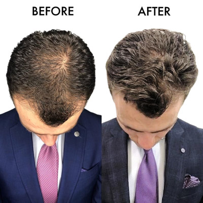 Before and after picture of hair transplant