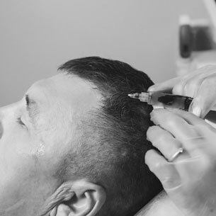 Monochrome photo of PRP hair restoration therapy
