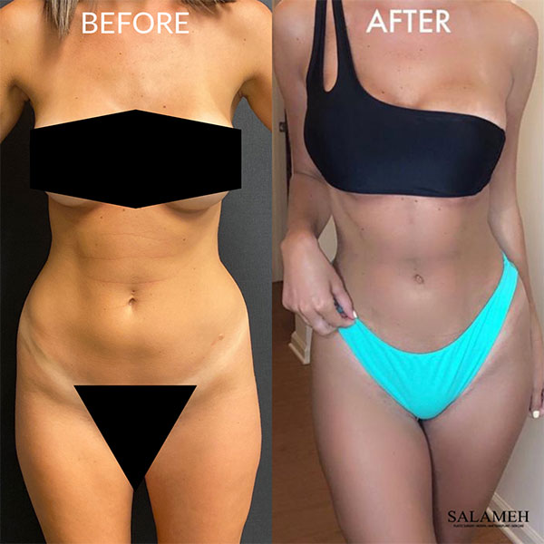 woman liposuction result after surgery before and after