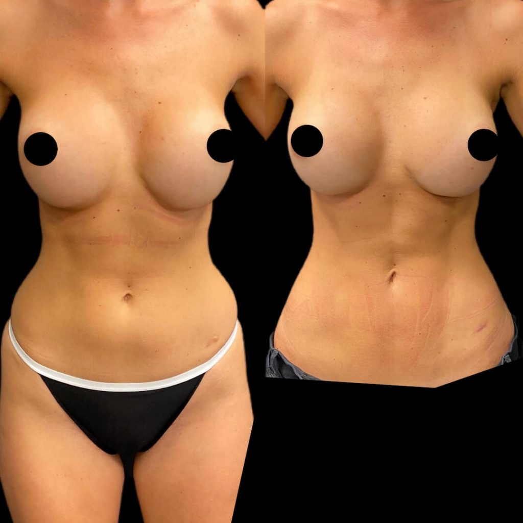 womans midsection body part after liposuction in bowling green