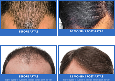 Know the Stages of Hair Loss