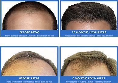 Before and after examples of ARTAS transplant