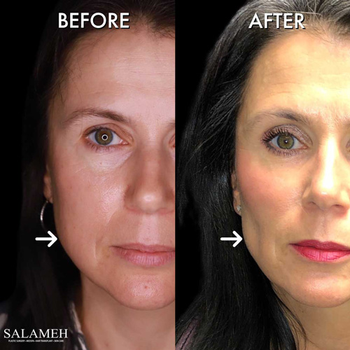 woman before and after buccal fat pad removal