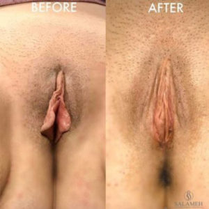 before and after labiaplasty treatment
