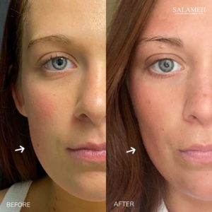 Before and after image of the left side of a woman's face after a buccal fat pad reduction