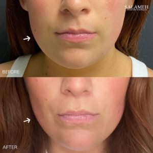 Before and after buccal fat pad reduction