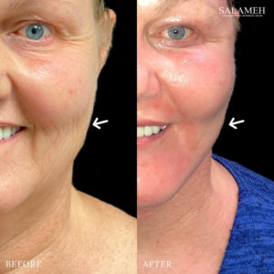 womans face before and after buccal fat pad reduction