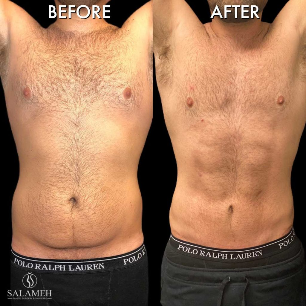 man before and after liposuction surgery of mid-section body