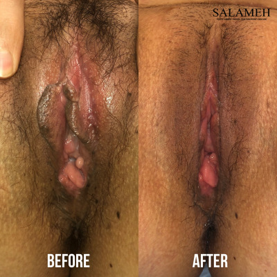 woman before and after labiaplasty surgery