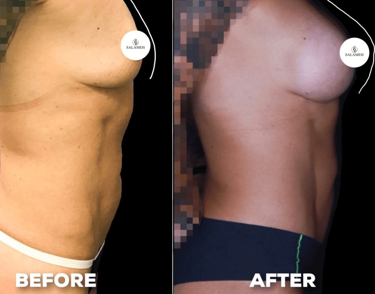 Before and after side view of breast augmentation