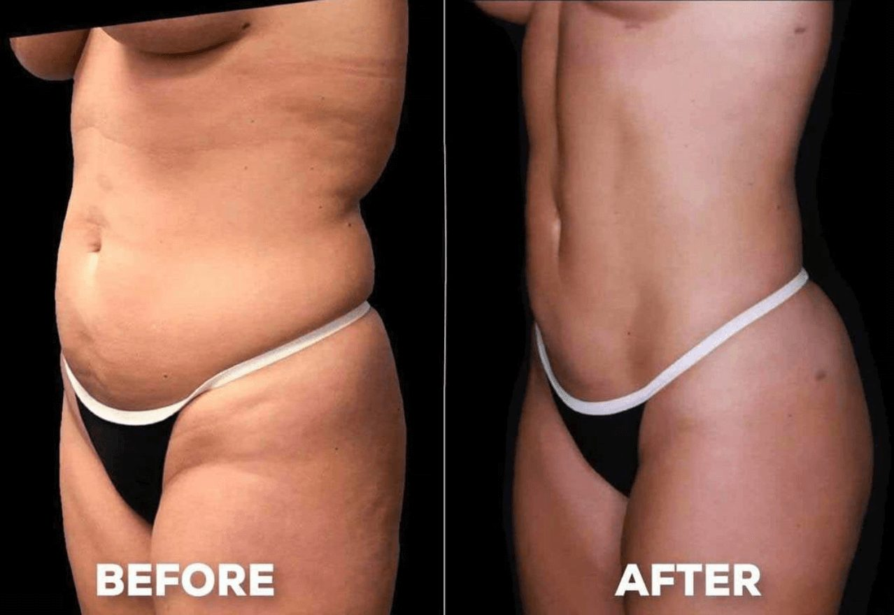 Before and after of liposuction procedure