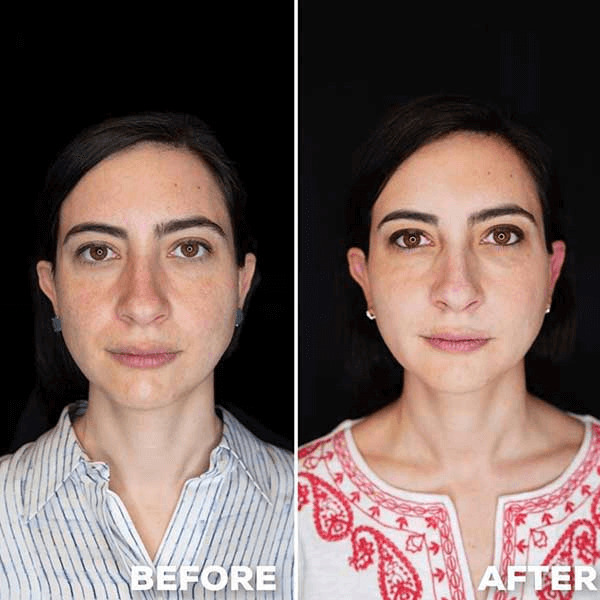 woman before after liquid facelifting