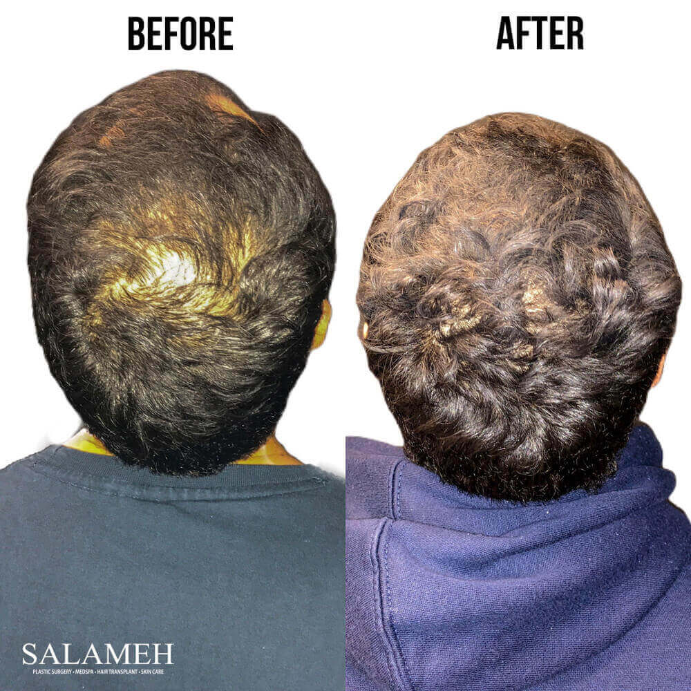 Scalp before and after hair restoration