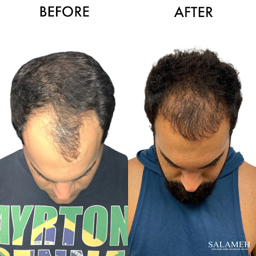 Before and after picture of hairline
