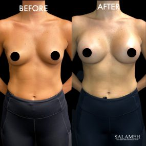 woman breast augmentation bowling green before and after