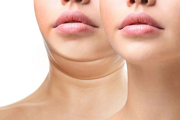 Double Chin Removal / Neck Liposuction