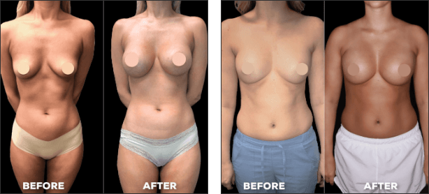 bowling green breast augmentation surgery before and after