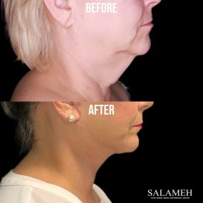 neck lift plastic surgery before and after
