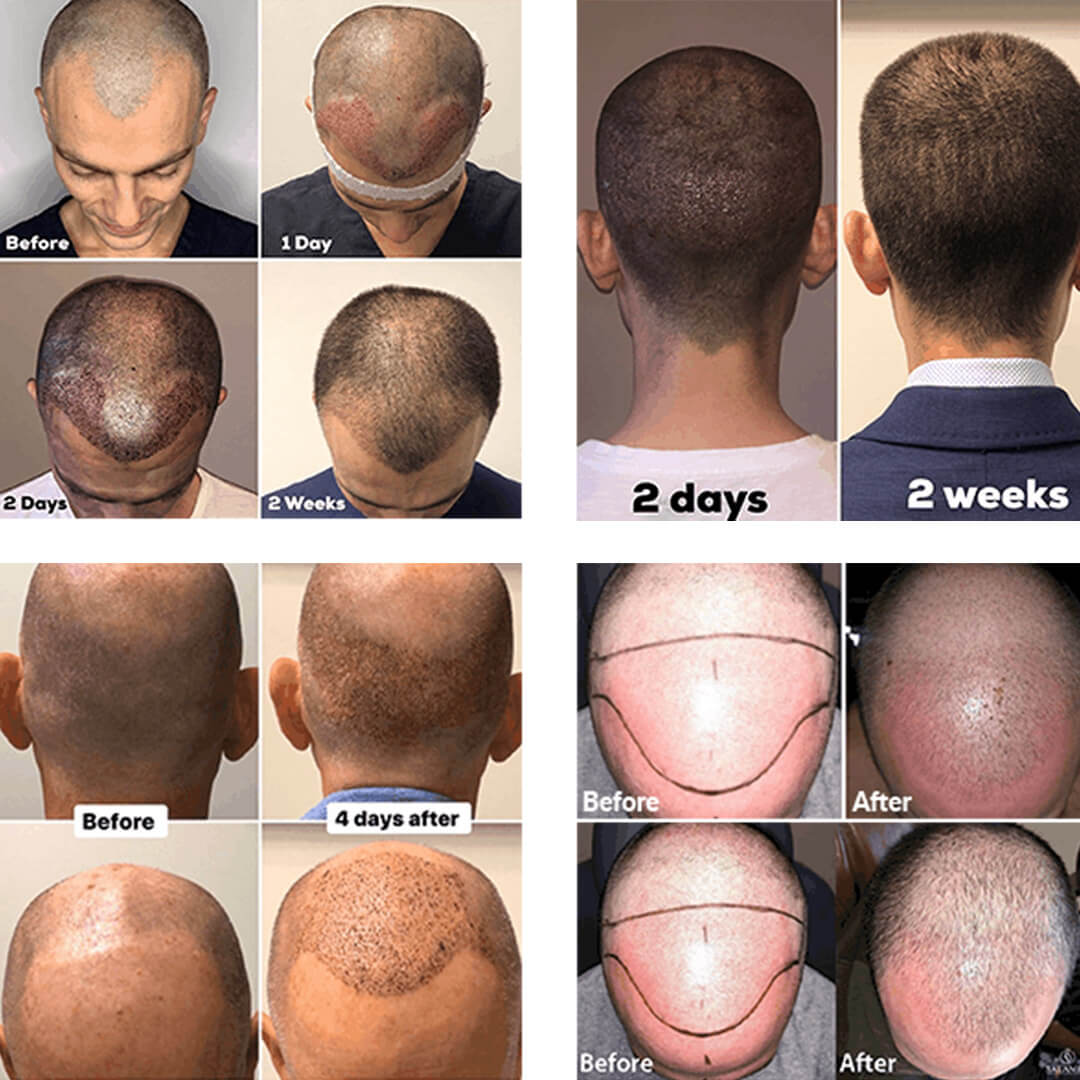 Multiple pictures of hair transplant before and after