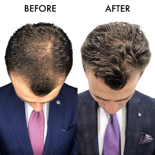 Top-down picture of hair transplant before and after