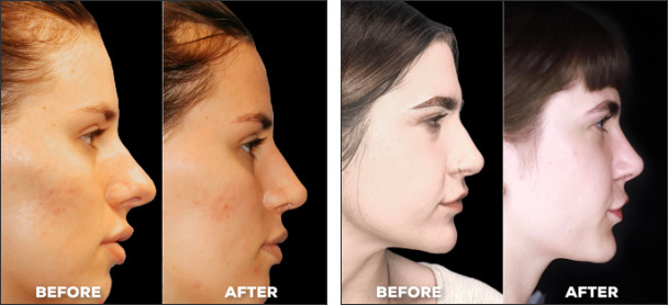 transformation from rhinoplasty before after