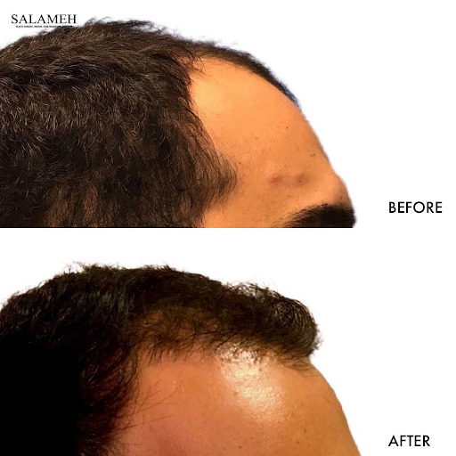 before and after of ARTAS hair transplant