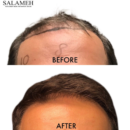 forehead before and after hair transplant