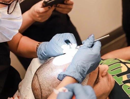 man having scalp prepared for hair transplant