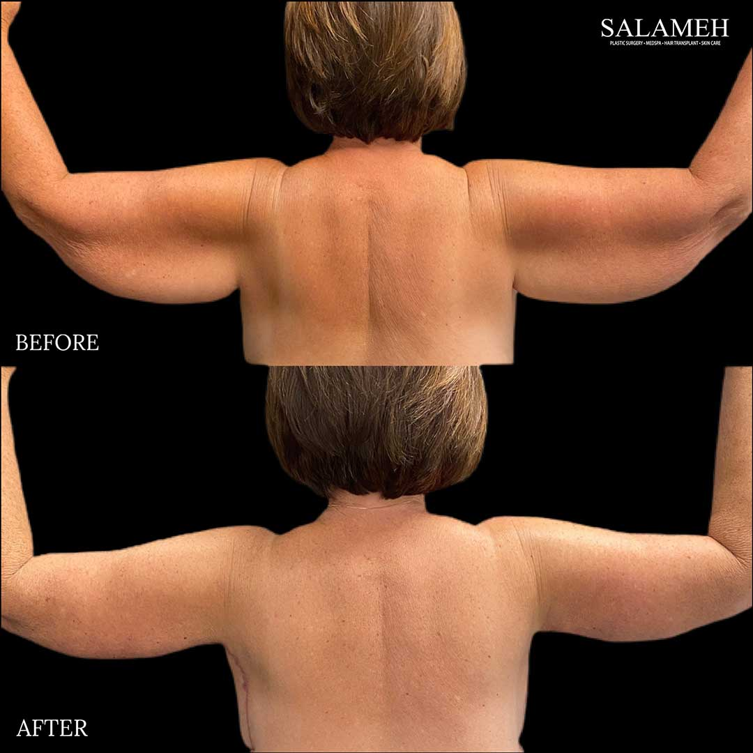 before and after of arm lift surgery