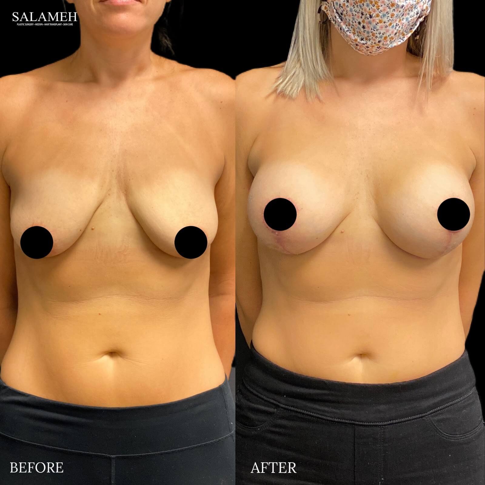 image showing the results of a breast lift, before and after