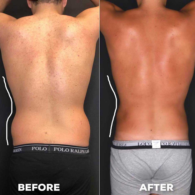 man's back before and after liposuction
