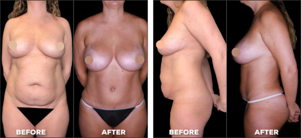 tummy tuck plastic surgery before and after