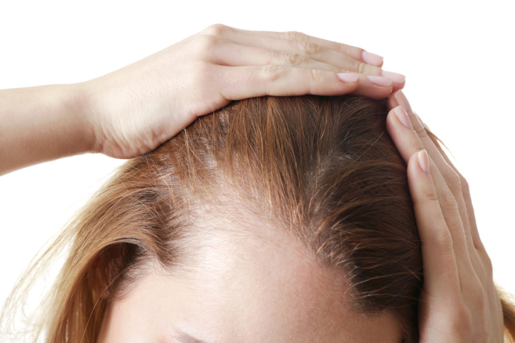 A close-up of a woman's thinning hairline with hands smoothing the hair back