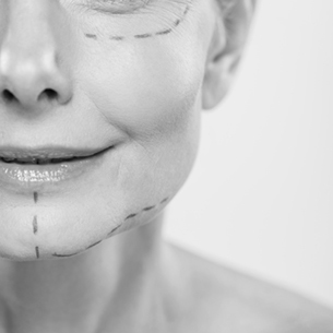 Black and White Image of Woman's Marked Up Face